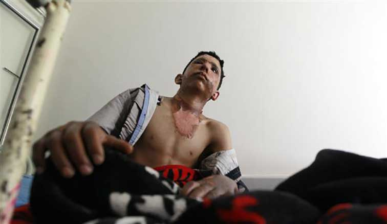 A Yemeni boy, who was injured in an airstrike by Saudi Arabia, sits on his bed at a hospital burn unit in the Yemeni capital, Sana'a, on August 9, 2015. (AFP photo)